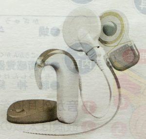 人工内耳 インプラント